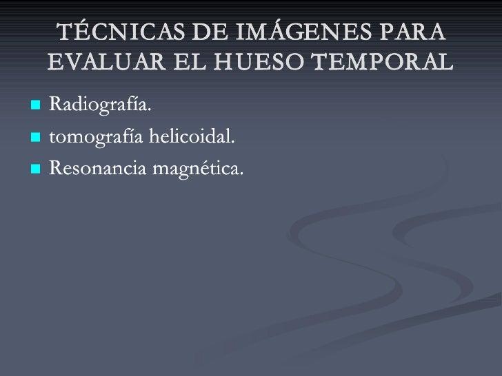 TÉCNICAS DE IMÁGENES PARA     EVALUAR EL H UESO TEMPORAL n   Radiografía. n   tomografía helicoidal. n   Resonancia magnét...