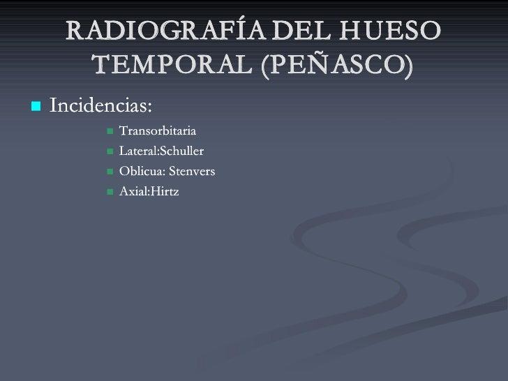 RADIOGRAFÍA DEL H UESO       TEMPORAL (PEÑASCO) n   Incidencias:           n   Transorbitaria           n   Lateral:Schull...