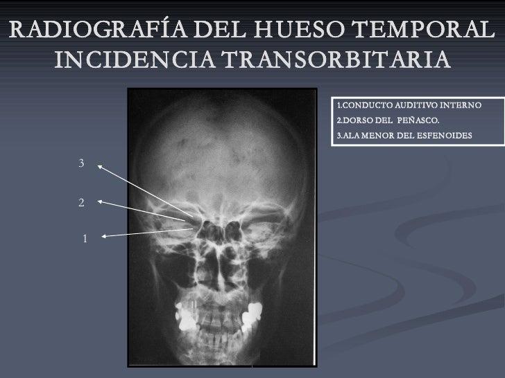RADIOGRAFÍA DEL H UESO TEMPORAL    INCIDENCIA TRANSORBITARIA                     1.CONDUCTO AUDITIVO INTERNO              ...