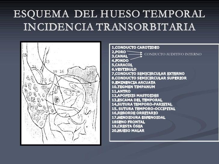 ESQUEMA DEL H UESO TEMPORAL  INCIDENCIA TRANSORBITARIA              1.CONDUCTOCAROTIDEO              2.PORO            ...