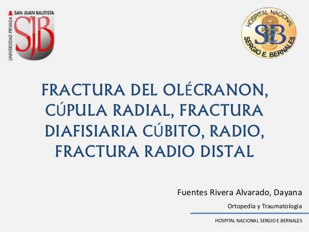 Fuentes Rivera Alvarado, Dayana HOSPITAL NACIONAL SERGIO E.BERNALES Ortopedia y Traumatología FRACTURA DEL OLÉCRANON, CÚPU...