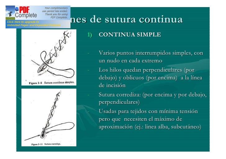 suturas