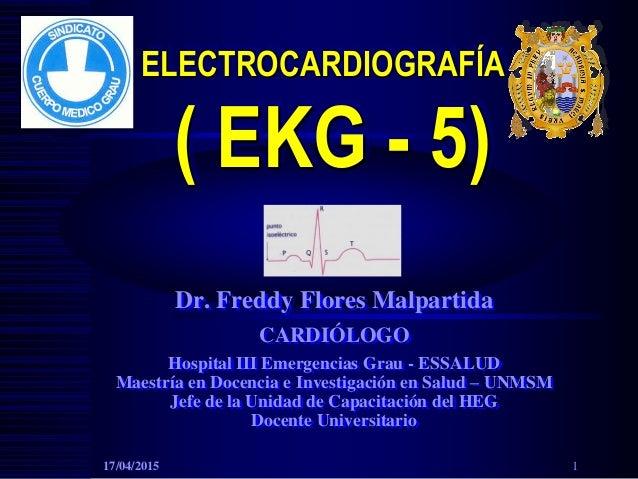 ELECTROCARDIOGRAFÍA ( EKG - 5) Dr. Freddy Flores Malpartida CARDIÓLOGO Hospital III Emergencias Grau - ESSALUD Maestría en...