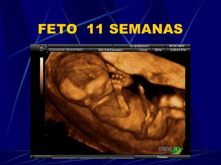 Fotos de fetos de 11 semanas de gestacion 67