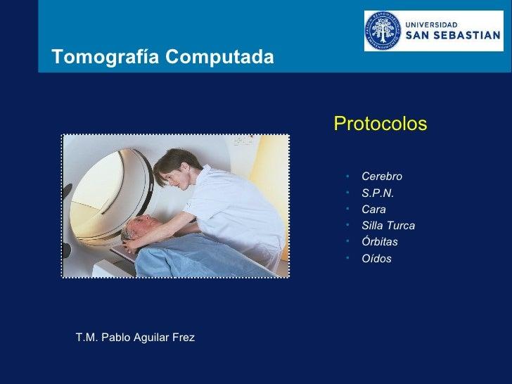 Tomografía Computada Protocolos T.M. Pablo Aguilar Frez <ul><li>Cerebro </li></ul><ul><li>S.P.N. </li></ul><ul><li>Cara </...