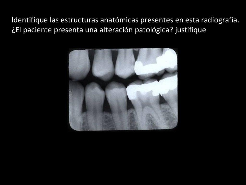 Clase anatomia radiográfica 4