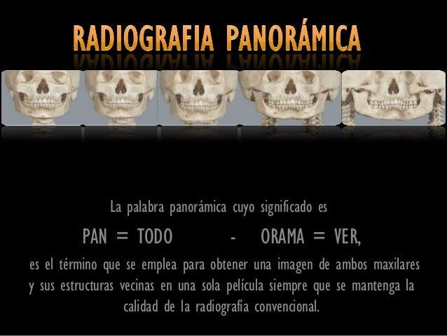 La palabra panorámica cuyo significado es         PAN = TODO                  -     ORAMA = VER,es el término que se emple...