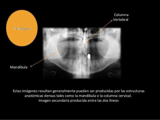 Radiología Panoramica