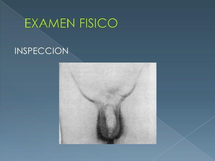 EXAMEN FISICO<br />INSPECCION<br />