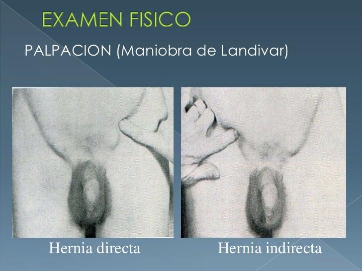 EXAMEN FISICO<br />PALPACION (Maniobra de Landivar)<br />Hernia directa<br />Hernia indirecta<br />