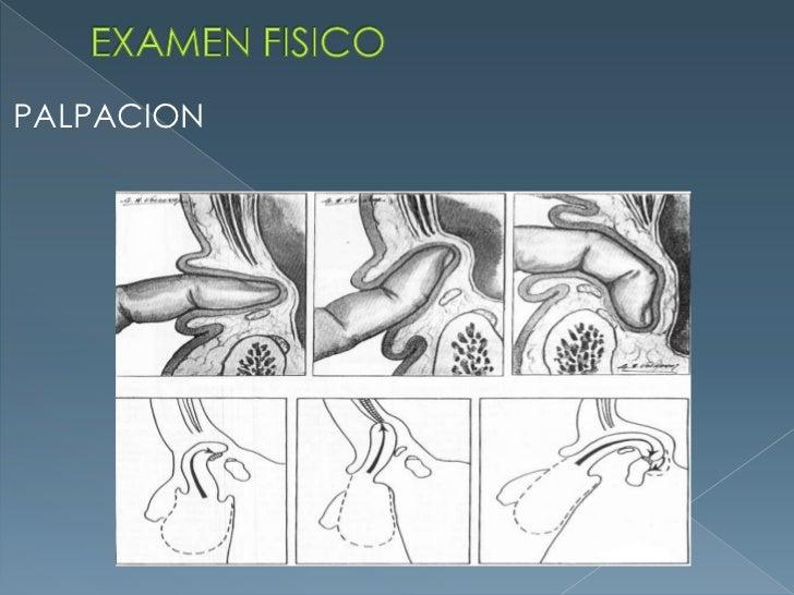 EXAMEN FISICO<br />PALPACION<br />