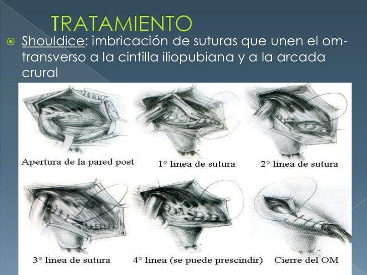 TRATAMIENTO<br />Shouldice: imbricación de suturas que unen el om-transverso a la cintilla iliopubiana y a la arcada crura...