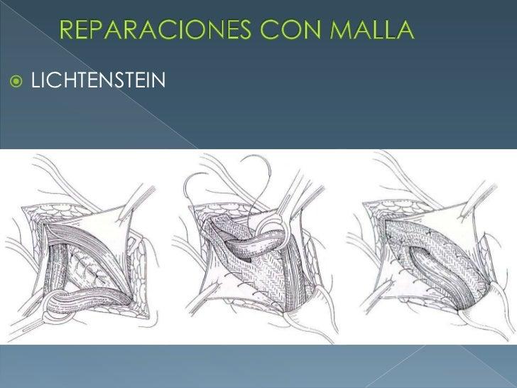 REPARACIONES CON MALLA<br />LICHTENSTEIN<br />