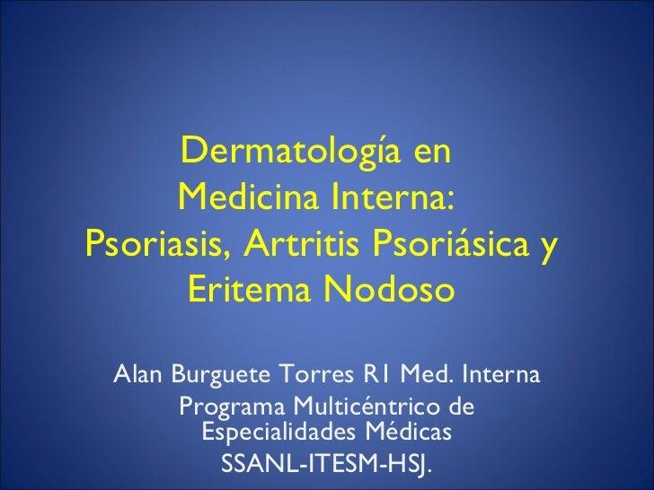 Dermatología en  Medicina Interna:  Psoriasis, Artritis Psoriásica y Eritema Nodoso Alan Burguete Torres R1 Med. Interna P...