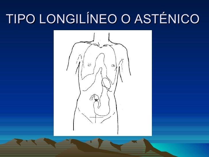 TIPO LONGILÍNEO O ASTÉNICO