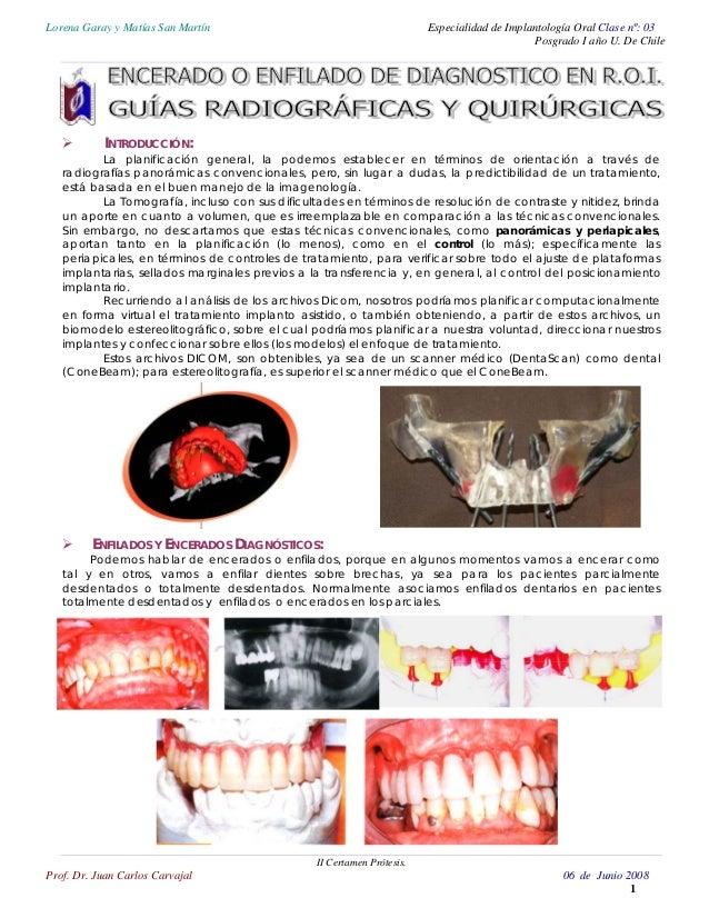 Lorena Garay y Matías San Martín Especialidad de Implantología Oral Clase nº: 03 Posgrado I año U. De Chile INTRODUCCIÓN: ...