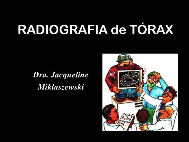 RADIOGRAFIA de TÓRAX Dra. Jacqueline Miklaszewski