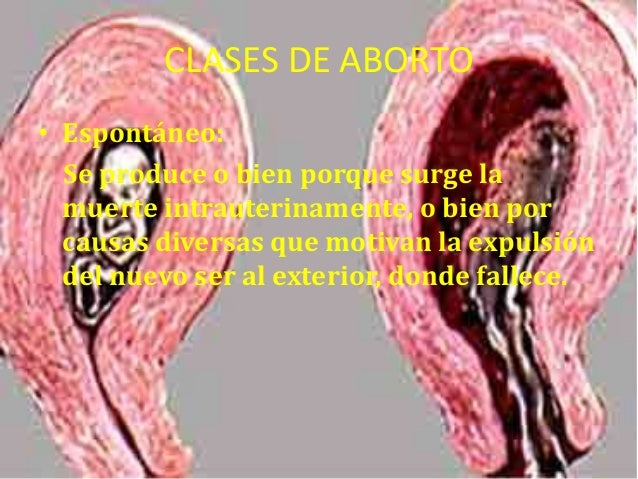 Clases de aborto Slide 2