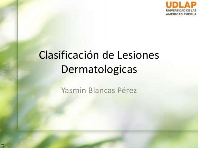 Clasificación de LesionesDermatologicasYasmin Blancas Pérez