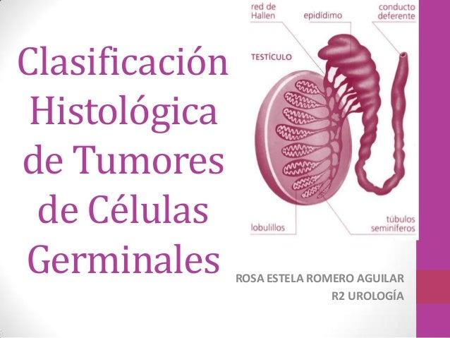 Clasificación Histológicade Tumores de CélulasGerminales      ROSA ESTELA ROMERO AGUILAR                               R2 ...