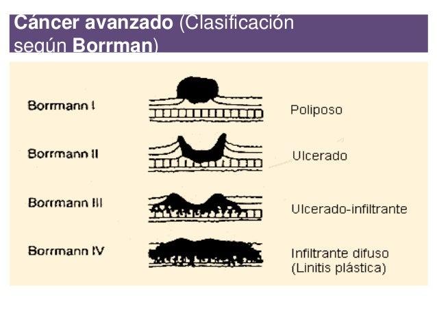 Clasificaci n de los Adenocarcinomas de est mago