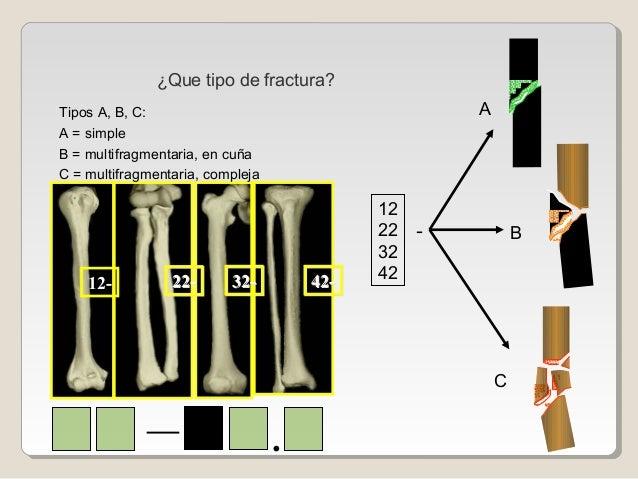 12- 22-22- 32-32- 42-42- 12 22 32 42 - A B C — . ¿Que tipo de fractura? Tipos A, B, C: A = simple B = multifragmentaria, e...