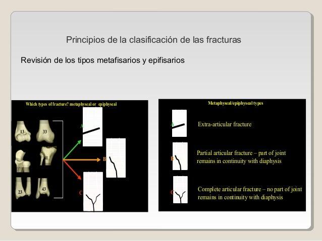 Revisión de los tipos metafisarios y epifisarios 21 13 33 41 23 43 A B C Which types of fracture? metaphyseal or epiphysea...