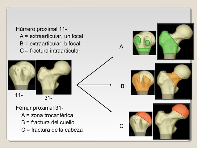 11- A C 31- B Húmero proximal 11- A = extraarticular, unifocal B = extraarticular, bifocal C = fractura intraarticular Fém...