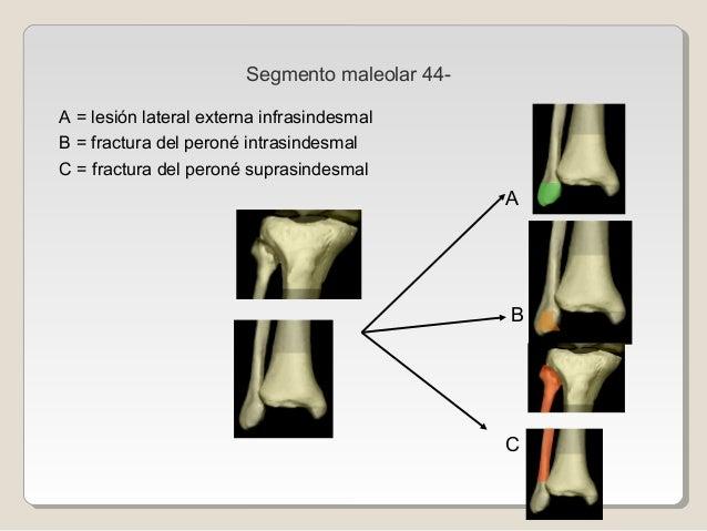 Segmento maleolar 44- A = lesión lateral externa infrasindesmal B = fractura del peroné intrasindesmal C = fractura del pe...