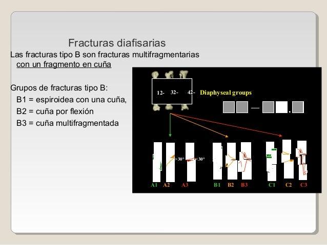 Las fracturas tipo B son fracturas multifragmentarias con un fragmento en cuña Grupos de fracturas tipo B: B1 = espiroidea...
