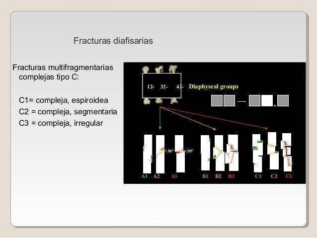 Fracturas multifragmentarias complejas tipo C: C1= compleja, espiroidea C2 = compleja, segmentaria C3 = compleja, irregula...