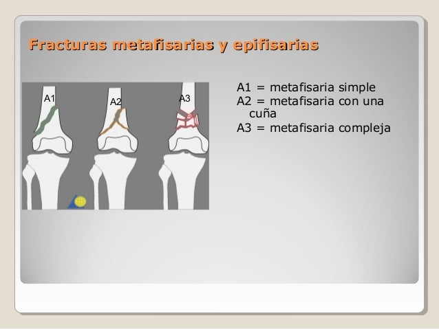 Fracturas metafisarias y epifisariasFracturas metafisarias y epifisarias A1 = metafisaria simple A2 = metafisaria con una ...