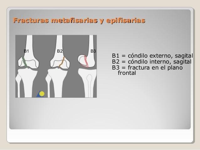 Fracturas metafisarias y epifisariasFracturas metafisarias y epifisarias B1 = cóndilo externo, sagital B2 = cóndilo intern...