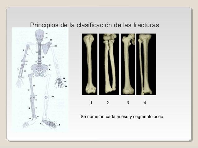 Se numeran cada hueso y segmento óseo 1 2 3 4 Principios de la clasificación de las fracturas