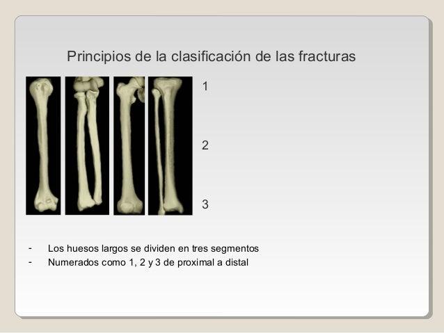 - Los huesos largos se dividen en tres segmentos - Numerados como 1, 2 y 3 de proximal a distal 1 2 3 Principios de la cla...