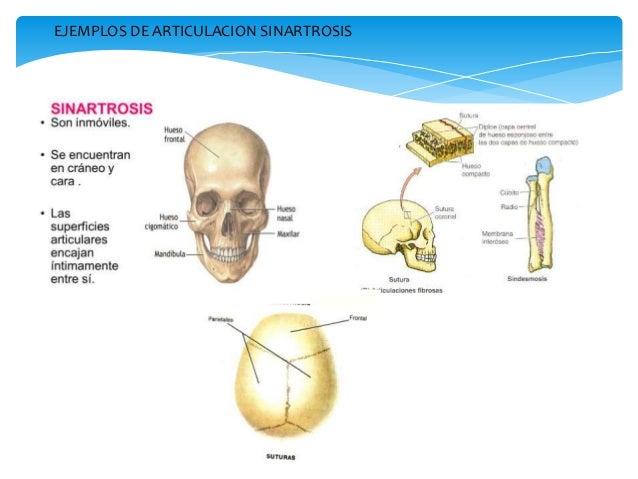Clasificacion de las articulaciones sinoviales o diartrosis
