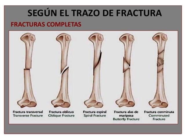 Clasificacion fracturas