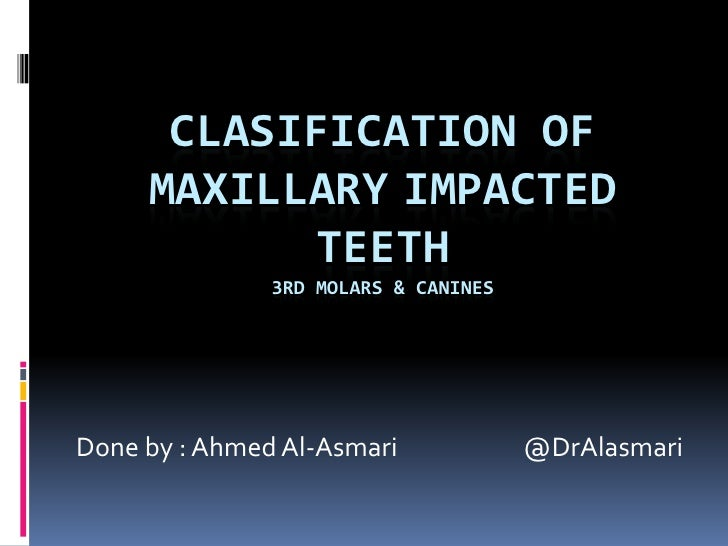 Clasification of MAXillaryimpacted teeth3rd molars & canines<br /> Done by : Ahmed Al-Asmari                      @DrAlasm...