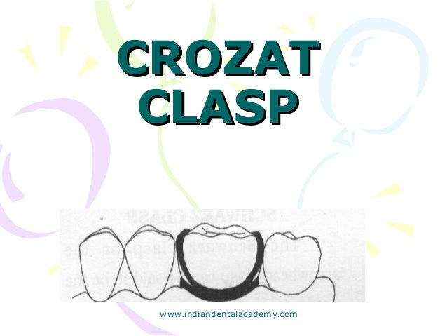 Clasps in orthodontics /certified fixed orthodontic courses by Indian…