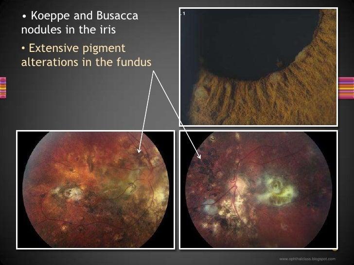 Extensive pigment alterations in the fundus</li></li></ul><li><ul><li> Koeppe and Busacca nodules in the iris