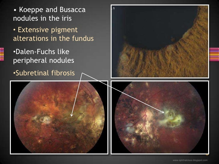 Dalen-Fuchs like peripheral nodules</li></li></ul><li><ul><li> Koeppe and Busacca nodules in the iris