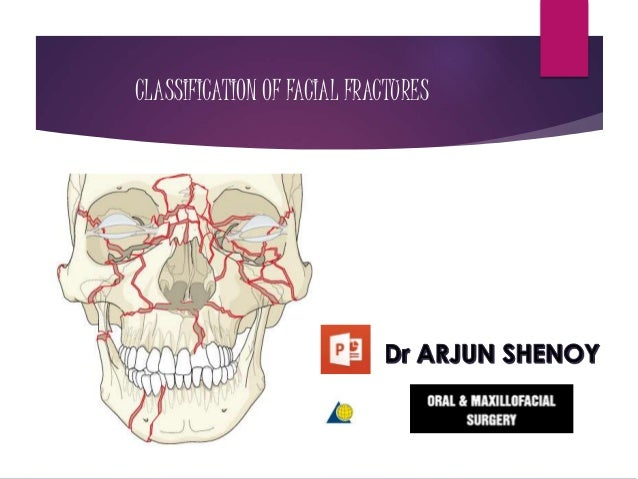 CLASSIFICATION OF FACIAL FRACTURES