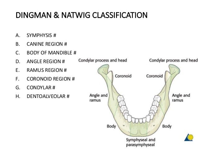 DINGMAN & NATWIG CLASSIFICATION A. SYMPHYSIS # B. CANINE REGION # C. BODY OF MANDIBLE # D. ANGLE REGION # E. RAMUS REGION ...