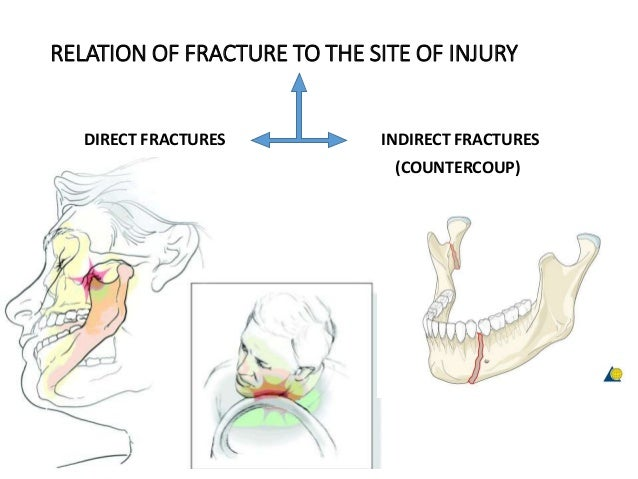 RELATION OF FRACTURE TO THE SITE OF INJURY DIRECT FRACTURES INDIRECT FRACTURES (COUNTERCOUP)
