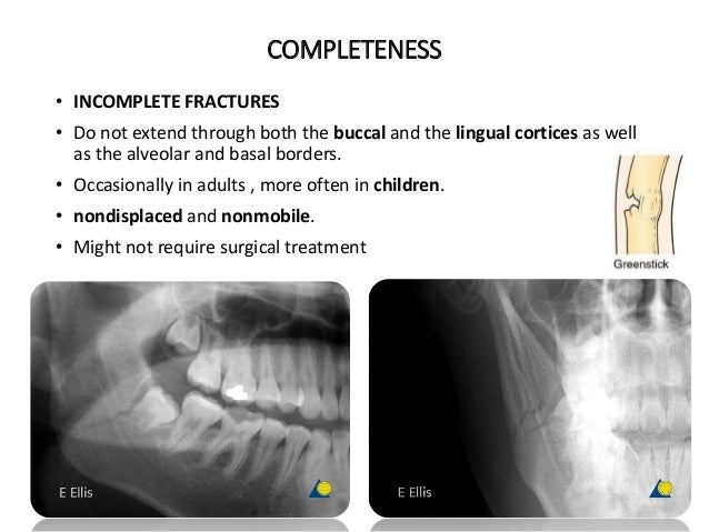 COMPLETENESS • INCOMPLETE FRACTURES • Do not extend through both the buccal and the lingual cortices as well as the alveol...