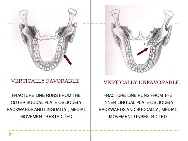 VERTICALLY FAVORABLE VERTICALLY UNFAVORABLE FRACTURE LINE RUNS FROM THE OUTER BUCCAL PLATE OBLIQUELY BACKWARDS AND LINGUAL...
