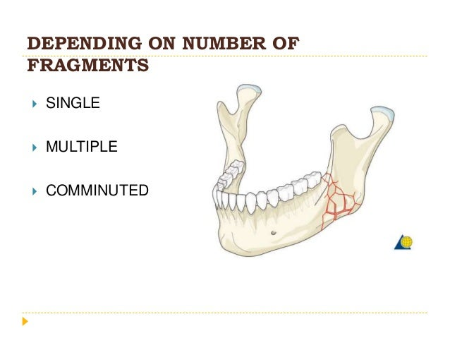 DEPENDING ON NUMBER OF FRAGMENTS  SINGLE  MULTIPLE  COMMINUTED