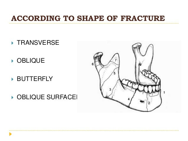 ACCORDING TO SHAPE OF FRACTURE  TRANSVERSE  OBLIQUE  BUTTERFLY  OBLIQUE SURFACED