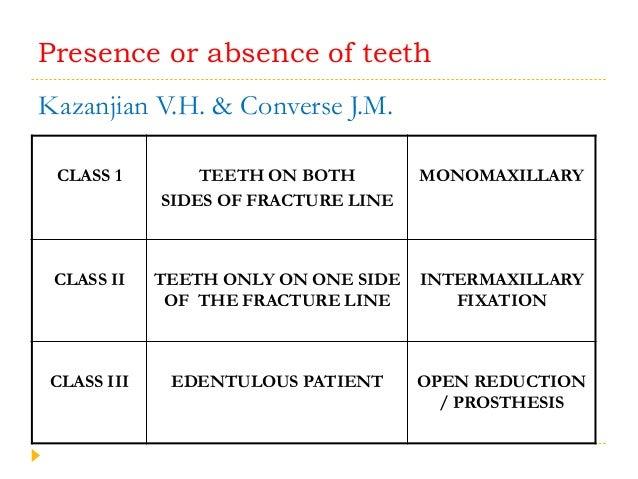 Presence or absence of teeth Kazanjian V.H. & Converse J.M. CLASS 1 TEETH ON BOTH SIDES OF FRACTURE LINE MONOMAXILLARY CLA...