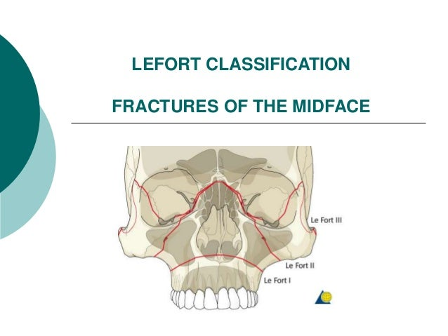 LEFORT CLASSIFICATION FRACTURES OF THE MIDFACE